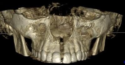 La revista Scientific Journal BMC Oral Health publica un article de l'estudi realitzat pel Sr. Sanchez Riofrío